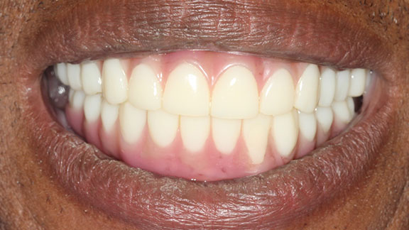 implant supported dentures Bradenton fl