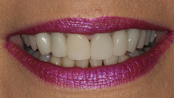 After cosmetic dentistry in Bradenton, FL