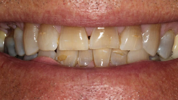 Before hybridge dental implants - Bradenton fl