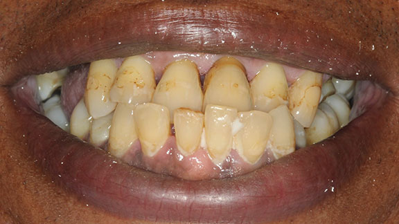 Periodontal Disease in Bradenton FL