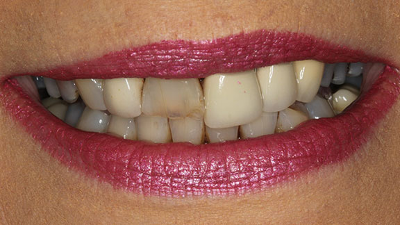 Before Cosmetic dentistry Bradenton, fl