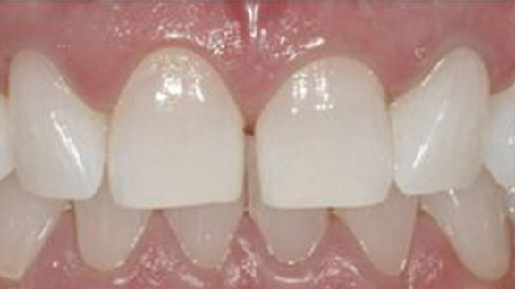 After teeth whitening in Bradenton, FL