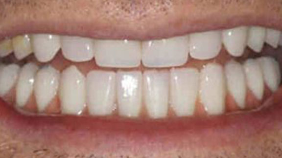 Teeth Whitening Bradenton, FL