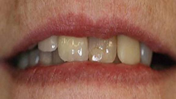 Before Teeth Whitening in Bradenton, FL