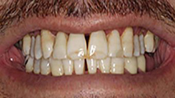 Periodontal disease in Bradenton, FL