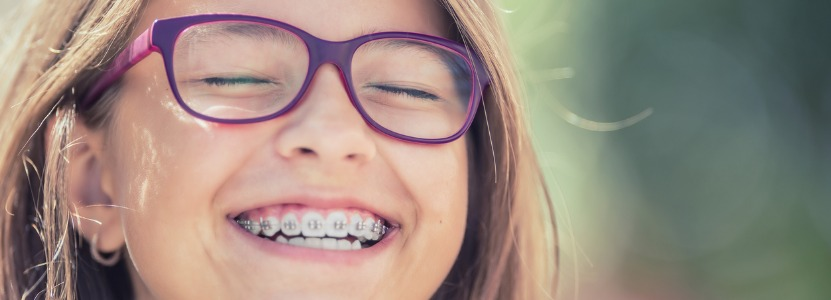 Why Summer Is the Best Time for Teens to Get Braces