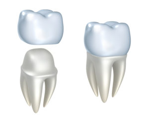 same day dental crown and tooth