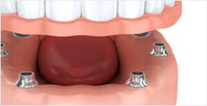 Full Arch Hybridge Dental Implant
