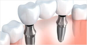 Multiple Teeth Hybridge Dental Implant