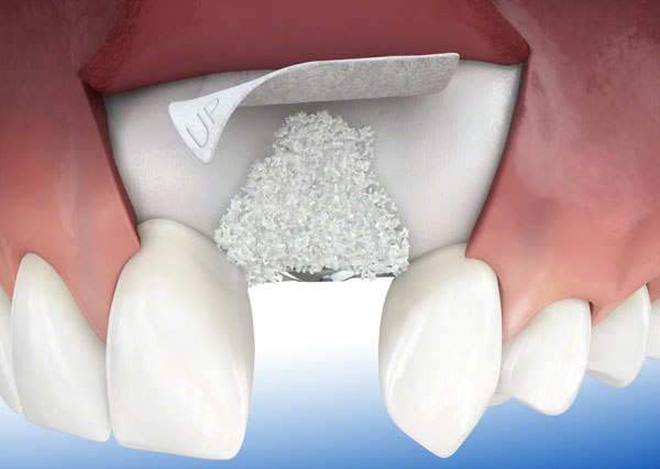 dental-bone-graft