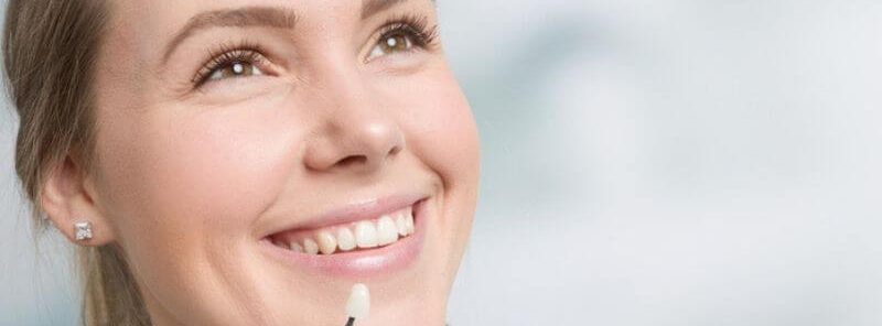 How to Whiten Veneers